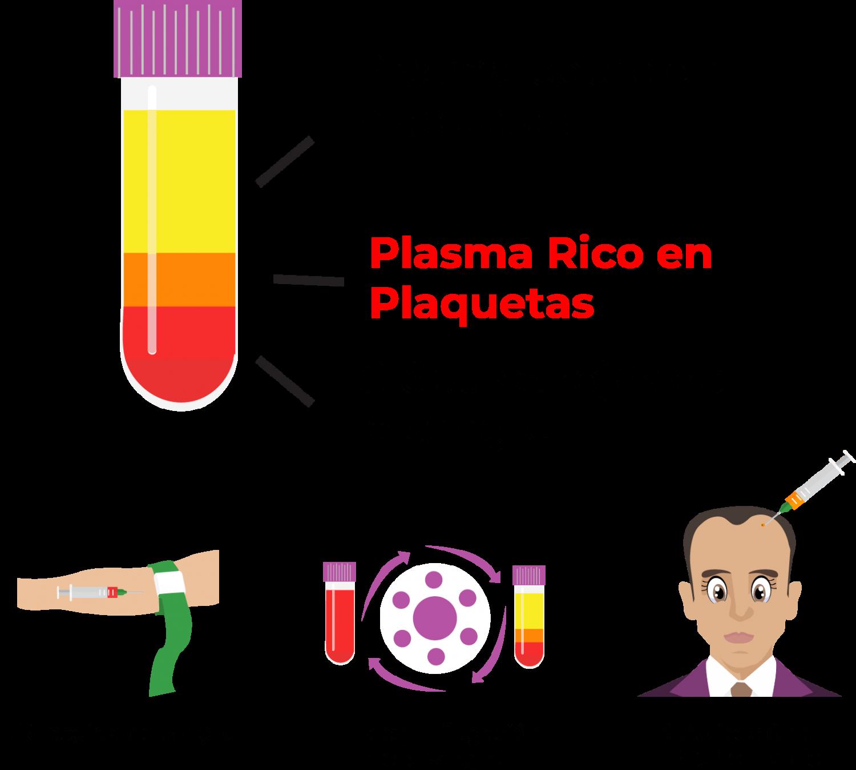 plasma rico en plaquetas para el crecimiento capilar