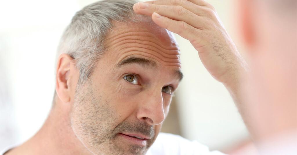por que se cae el pelo